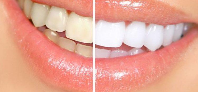 Como o clareamento dental vem crescendo?