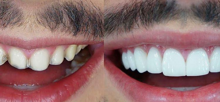 Dr. Igor Ribeiro fala sobre Lentes de Contato Dental, o tratamento mais buscado em Fortaleza