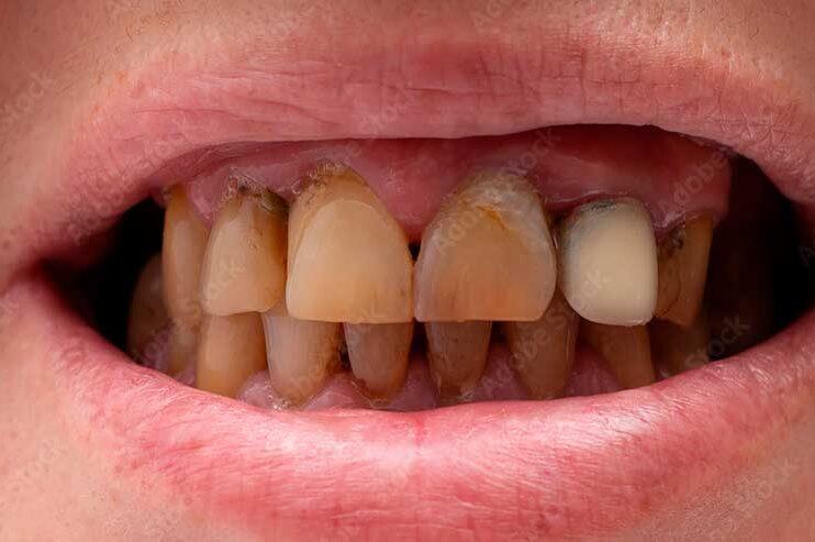 Narguile: entenda como a nova moda entre os jovens pode prejudicar os dentes